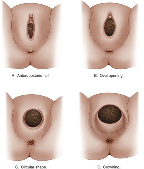 Perineal Massage during Pregnancy